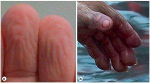 Викликані вологою зморшки на руках: а. першого автора цікавої статті (див. далі), б. молодої макаки.