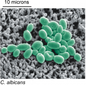 Гарненькі представники виду Candida albicans, що викликають кандидоз. Зображення: London R (CC BY 4.0)*